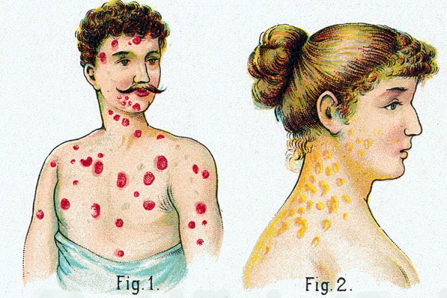 пути заражения сифилисом