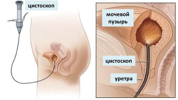 Цистоскопия в Москве стоимость