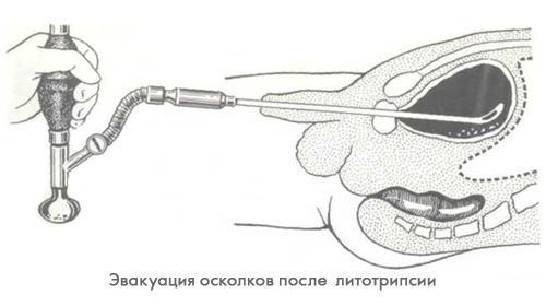 Удаление камней мочевого пузыря в Москве цена