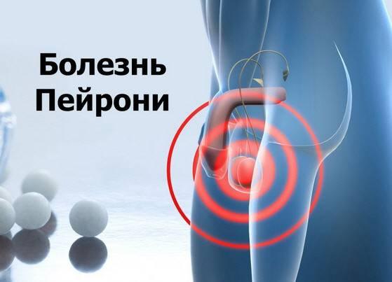 Лечение болезни Пейрони в Москве цена