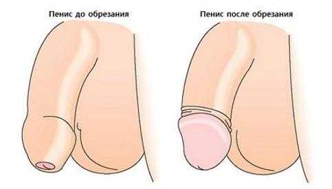 Операция циркумцизио
