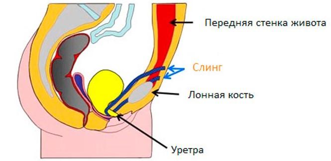 Операция TVT-O в Москве цена