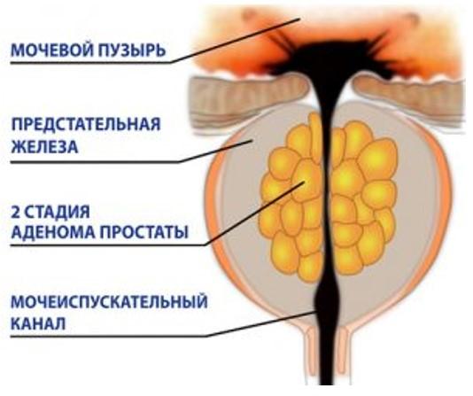 Удаление аденомы простаты в Москве стоимость