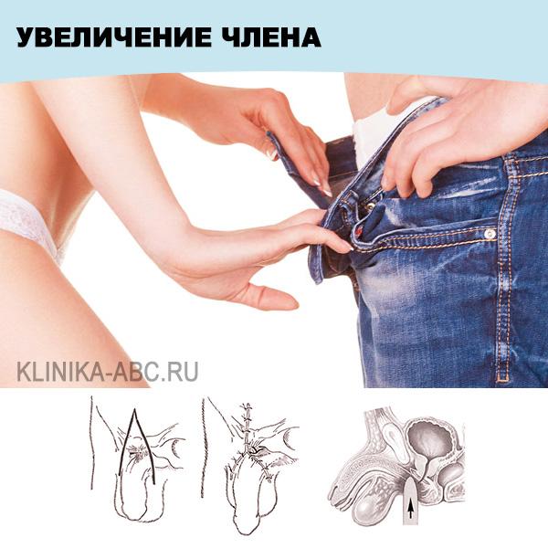 Стоимость увеличения полового члена в Москве